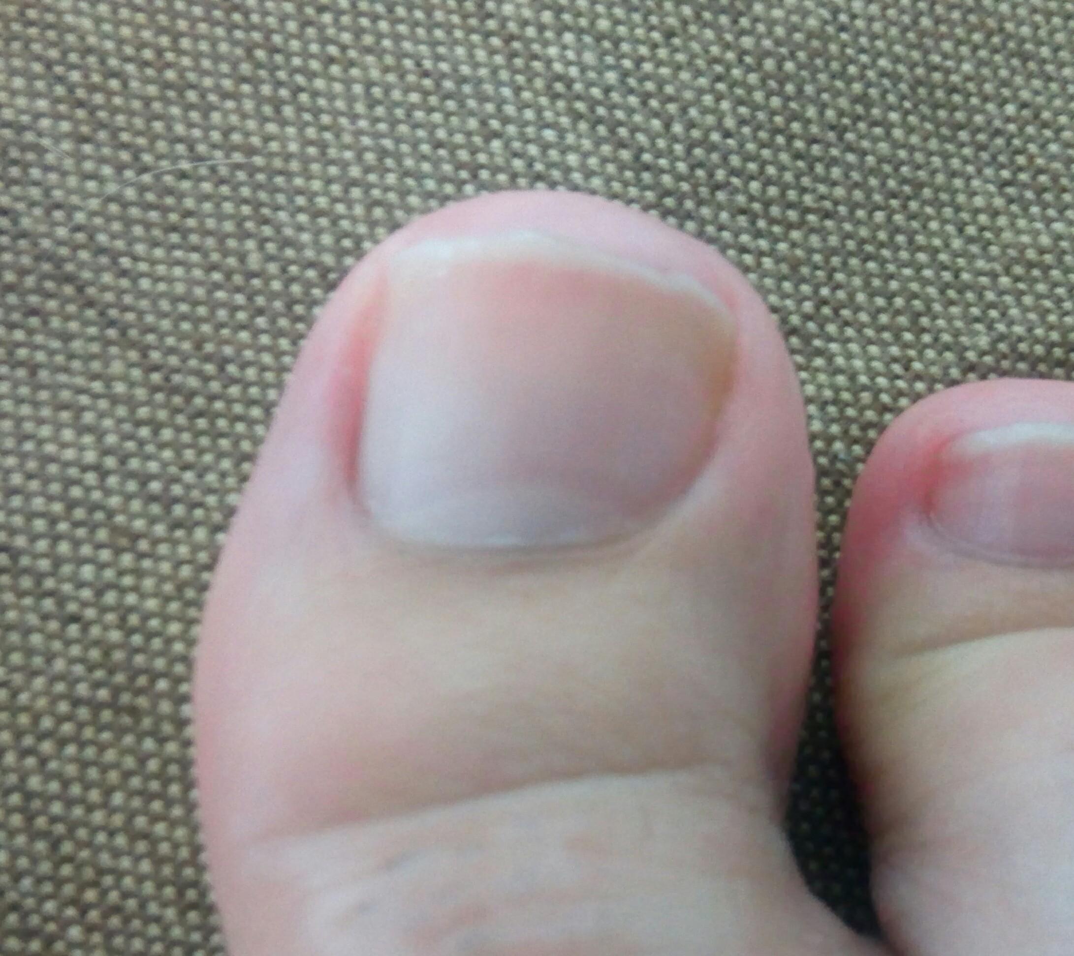 親指 だけ の しびれ 足